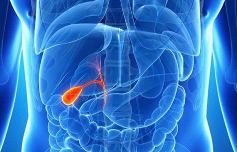 желчнокаменная болезнь1