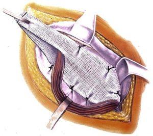 Операции при паховой грыже