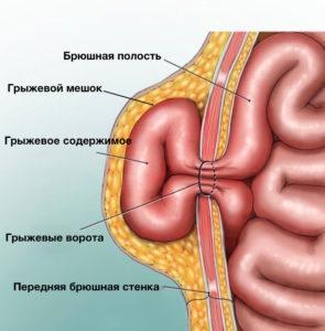 kopiya-ventral-hernia